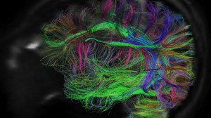 """BigBrain"" - a very detailed MRI Scan of a brain of a healthy 65-year old woman, still to be explored regards actual neural connectivity. A Task, similar to the HUGO (The Human Genome Project), for a enormous research initiative - BRAIN - launched last year. Source: Via PBS."